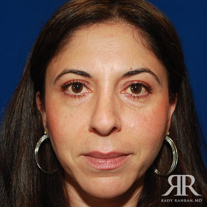 corrective nose surgery los angeles