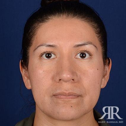 Corrective / Revision Rhinoplasty