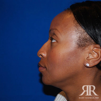 before photo of rhinoplasty and chin implant