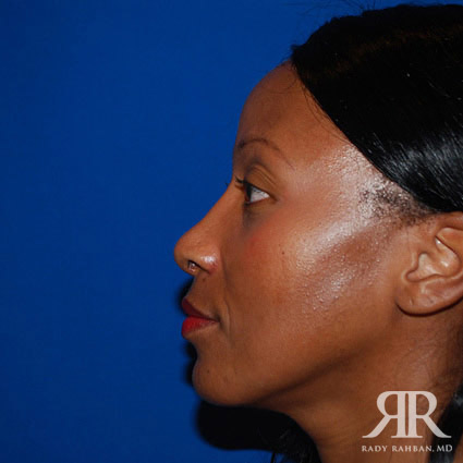 after photos of rhinoplasty and chin implant