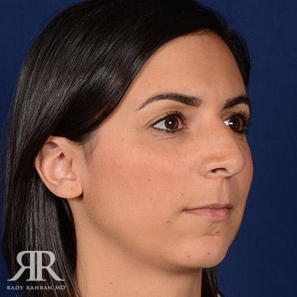 Rhinoplasty w/ Chin Implant