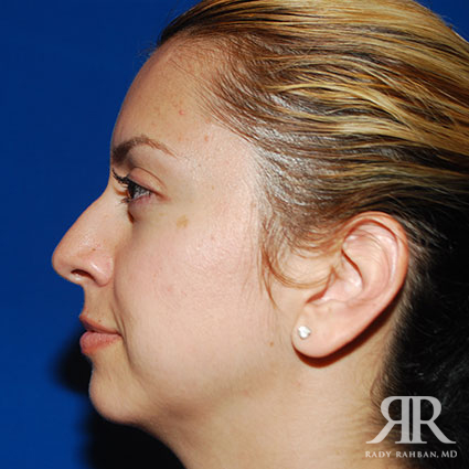 Rhinoplasty w/ Chin Implant