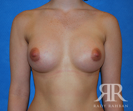 Breast Augmentation Before & After Photo 01