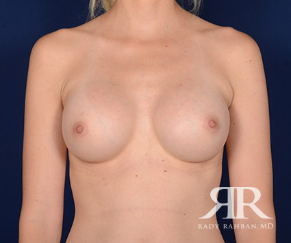 Breast Augmentation Before & After Photo 02