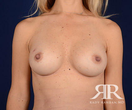 Breast Augmentation Before & After Photo 03