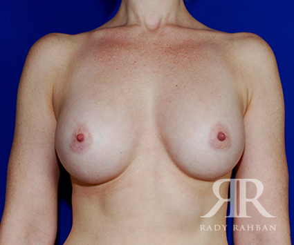 Breast Augmentation