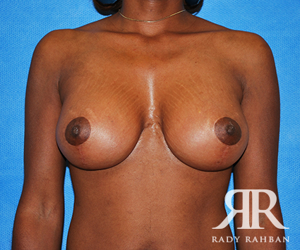 Breast Lift in Beverly Hills: Before & After Photo 01