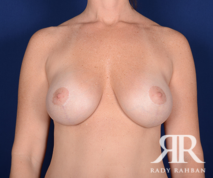 Breast Lift in Beverly Hills: Before & After Photo 02