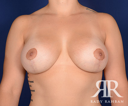 Breast Lift in Beverly Hills: Before & After Photo 03
