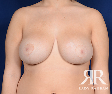 After Breast Reduction Photo