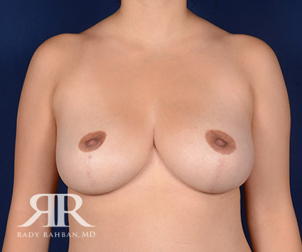 Breast Reduction Before & After Photo 02