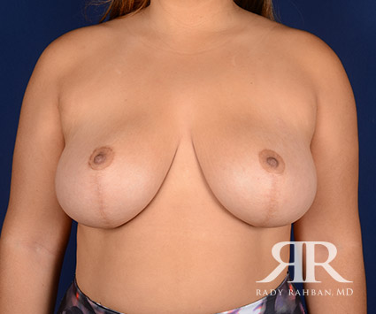 Breast Reduction Before & After Photo 03