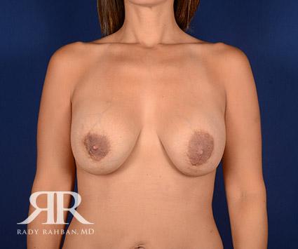 Corrective Breast Surgery