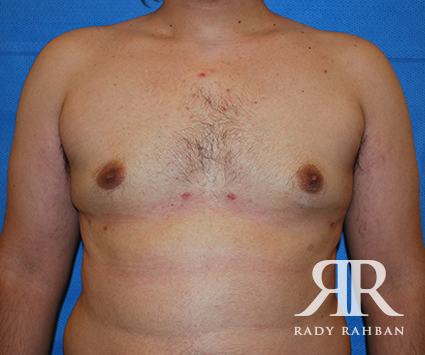 Male Breast Reduction Befoe & After Photo 02
