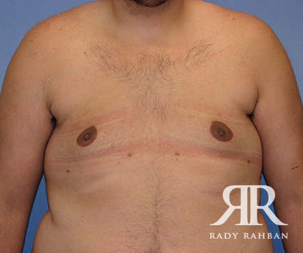 Male Breast Reduction Befoe & After Photo 03