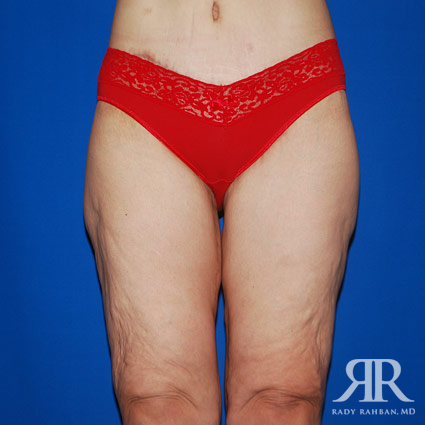 Thigh Lift Before & After Photo 01