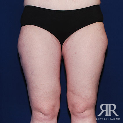 Thigh Lift Before & After Photo 02