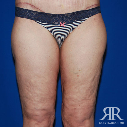 Thigh Lift Before & After Photo 03
