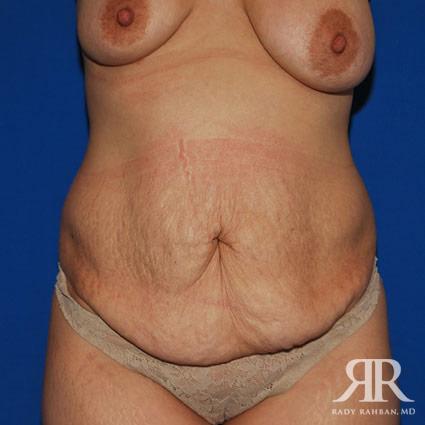 Tummy Tuck
