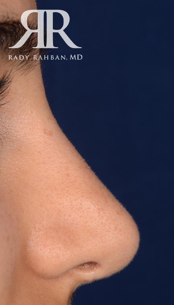 Rhinoplasty Close up