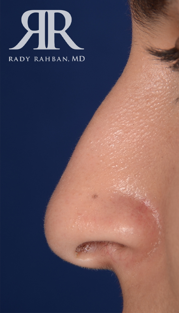 Rhinoplasty Close up