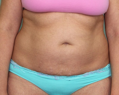 Liposuction Gallery - Patient 5794624 - Image 1