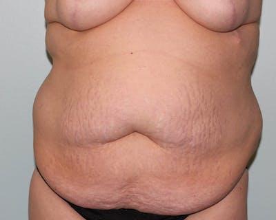 Tummy Tuck (Abdominoplasty) Gallery - Patient 5794629 - Image 1
