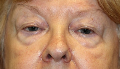 Eyelid Lift (Blepharoplasty) Gallery - Patient 5794630 - Image 1