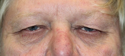 Eyelid Lift (Blepharoplasty) Gallery - Patient 5794631 - Image 1