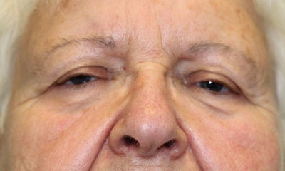 Eyelid Lift (Blepharoplasty) Gallery - Patient 5794632 - Image 1