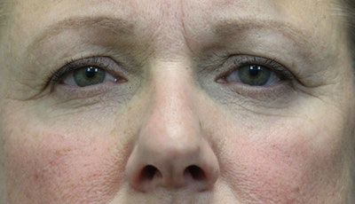 Eyelid Lift (Blepharoplasty) Gallery - Patient 5794634 - Image 1