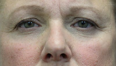 Eyelid Lift (Blepharoplasty) Gallery - Patient 5794634 - Image 1