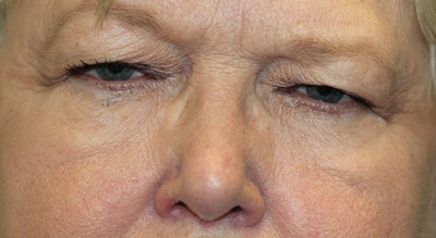 Eyelid Lift (Blepharoplasty) Gallery - Patient 5794635 - Image 1