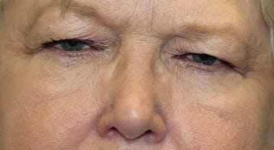 Eyelid Lift (Blepharoplasty) Gallery - Patient 5794635 - Image 1