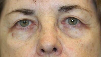 Eyelid Lift (Blepharoplasty) Gallery - Patient 5794637 - Image 1