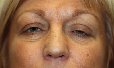 Eyelid Lift (Blepharoplasty) Gallery - Patient 5794638 - Image 1