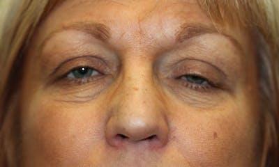 Eyelid Lift (Blepharoplasty) Gallery - Patient 5794638 - Image 1