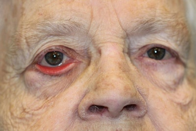 Eyelid Lift (Blepharoplasty) Gallery - Patient 5794639 - Image 1