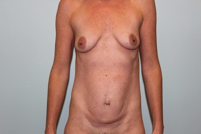 Mommy Makeover Gallery - Patient 5794648 - Image 1