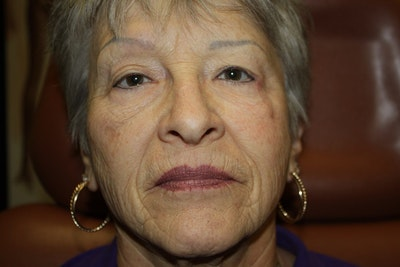 Facelift Gallery - Patient 5794649 - Image 1