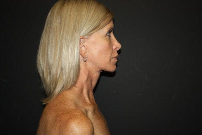 Facelift Gallery - Patient 5794650 - Image 1