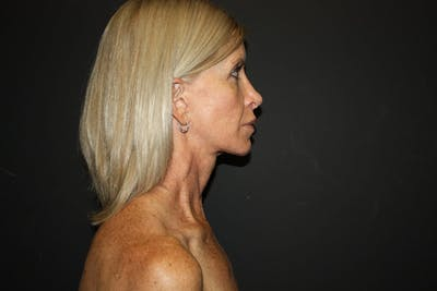 Facelift Gallery - Patient 5794650 - Image 1
