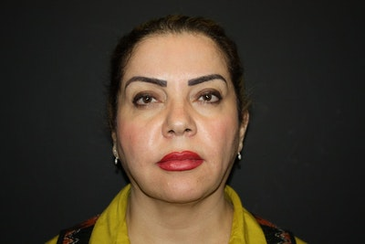 Facelift Gallery - Patient 5794651 - Image 1