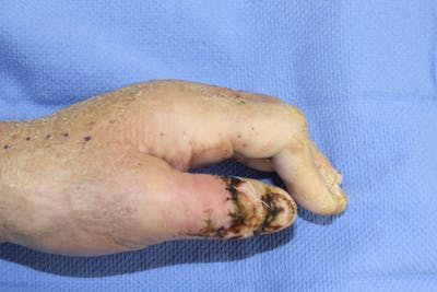 Hand Flaps, Grafts, Reconstruction Gallery - Patient 5799656 - Image 1
