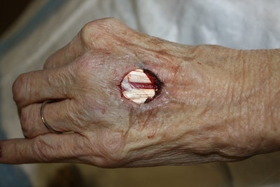 Hand Flaps, Grafts, Reconstruction Gallery - Patient 5799669 - Image 1