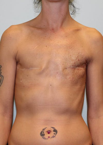Breast Reconstruction Gallery - Patient 5799693 - Image 1