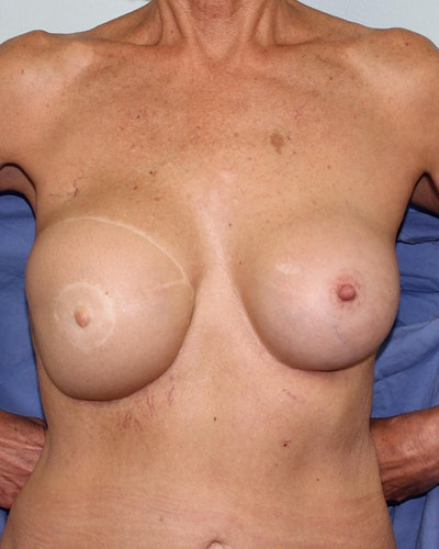 Breast Reconstruction Gallery - Patient 5799696 - Image 1