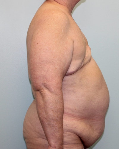 Breast Reconstruction Gallery - Patient 5799711 - Image 1