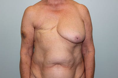Breast Reconstruction Gallery - Patient 5799715 - Image 1