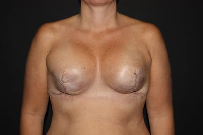 Breast Reconstruction Gallery - Patient 5799723 - Image 1